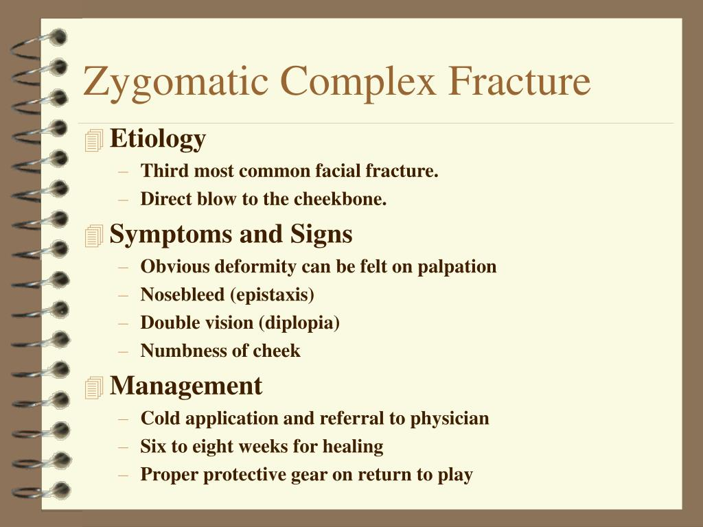 Zygomatic Complex Fracture