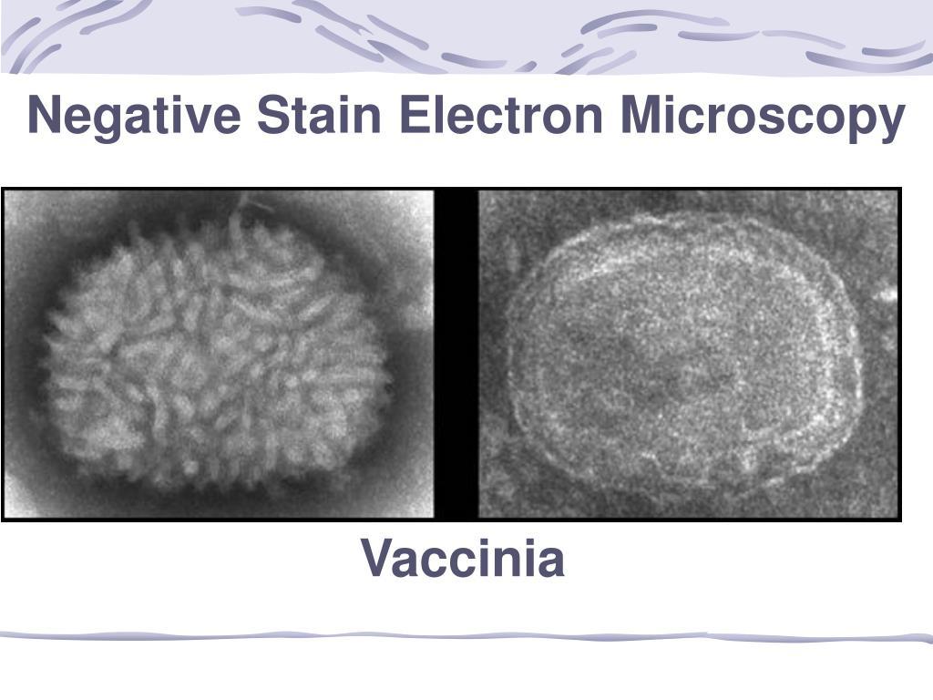 Negative Stain Electron Microscopy