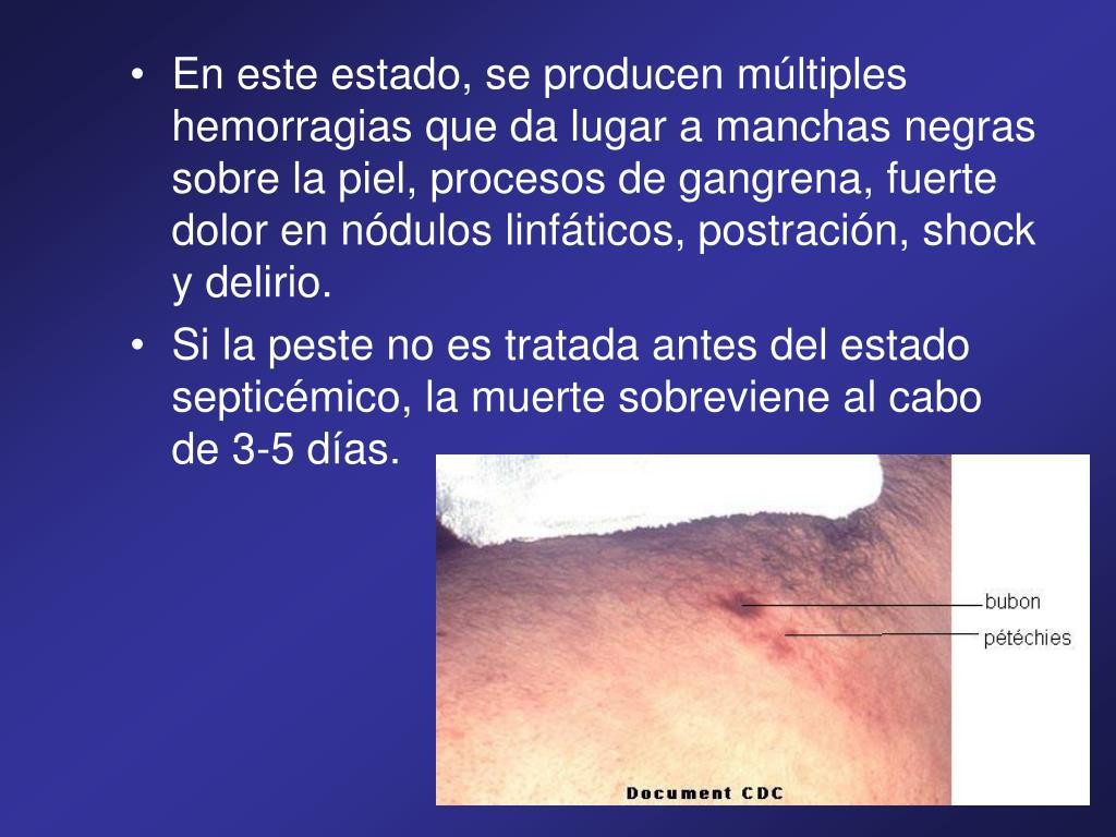 En este estado, se producen múltiples hemorragias que da lugar a manchas negras sobre la piel, procesos de gangrena, fuerte dolor en nódulos linfáticos, postración, shock y delirio.