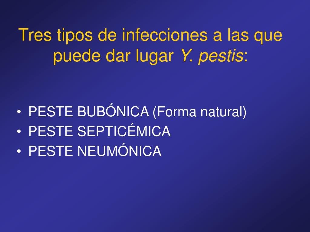 Tres tipos de infecciones a las que puede dar lugar