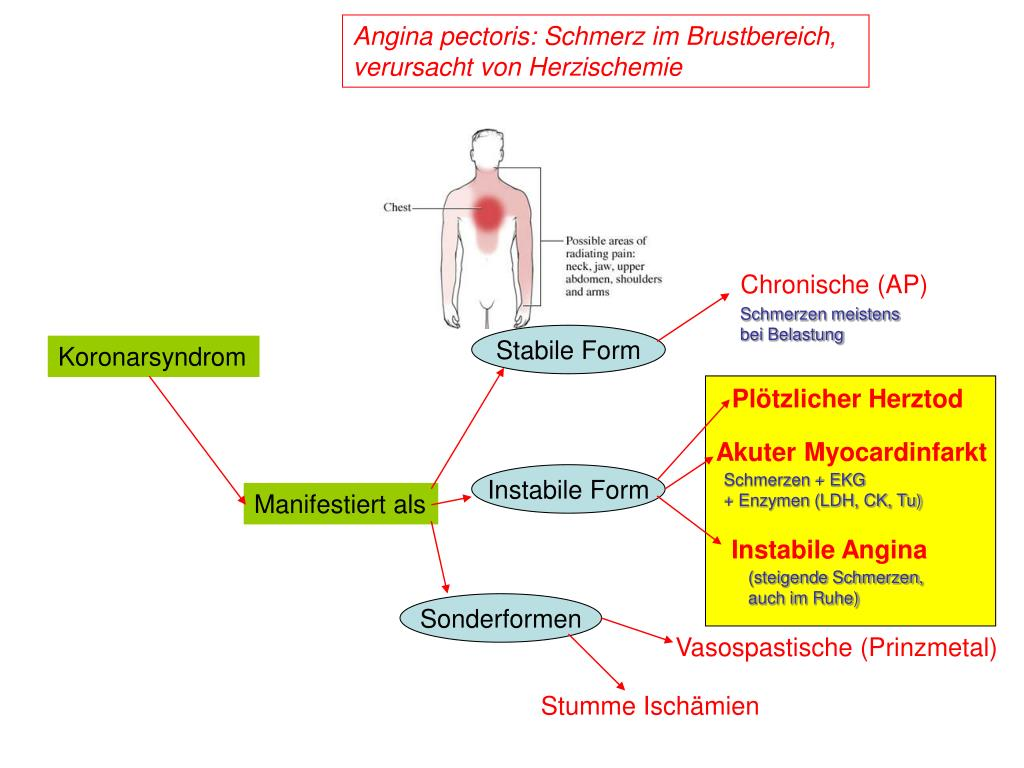 Angina pectoris: Schmerz im Brustbereich, verursacht von Herzischemie
