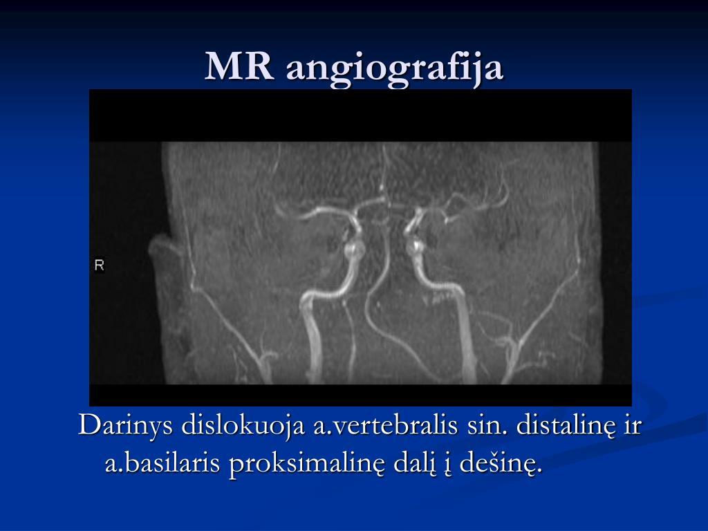 MR angiografija