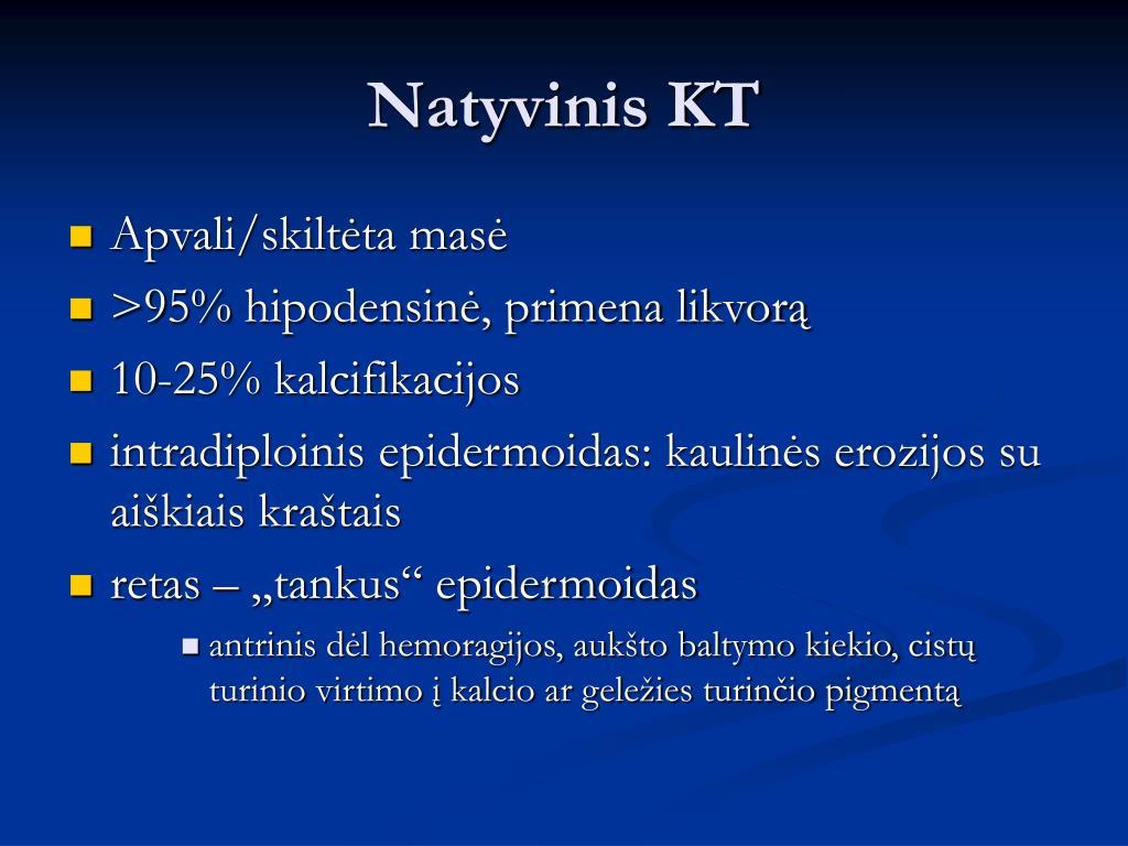 Natyvinis KT