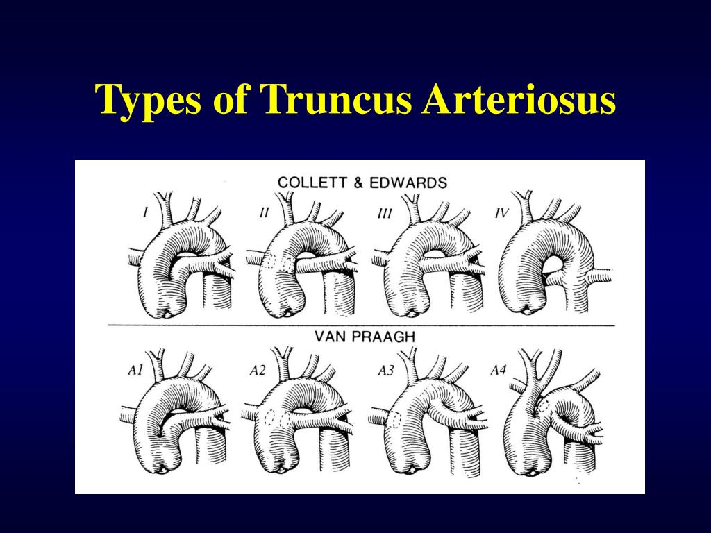 Types of Truncus Arteriosus