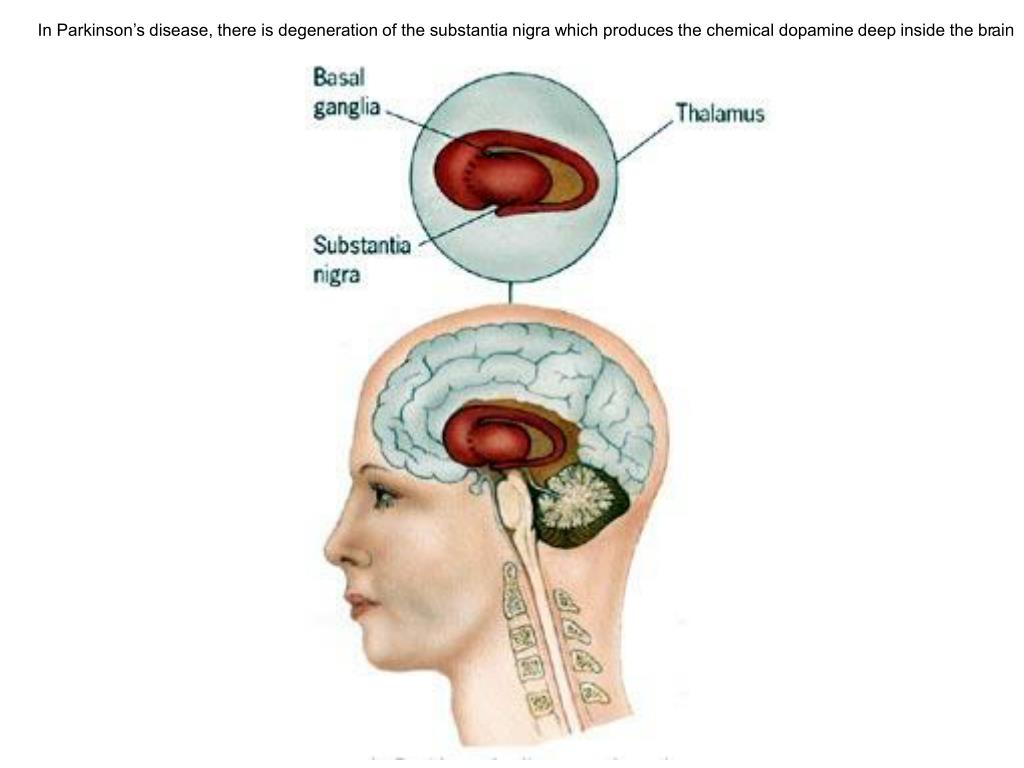 In Parkinson's disease, there is degeneration of the substantia nigra which produces the chemical dopamine deep inside the brain