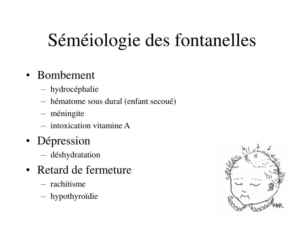 Séméiologie des fontanelles