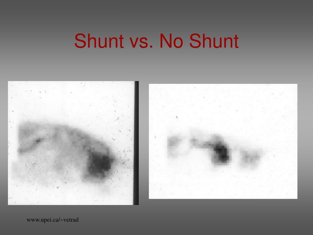 Shunt vs. No Shunt