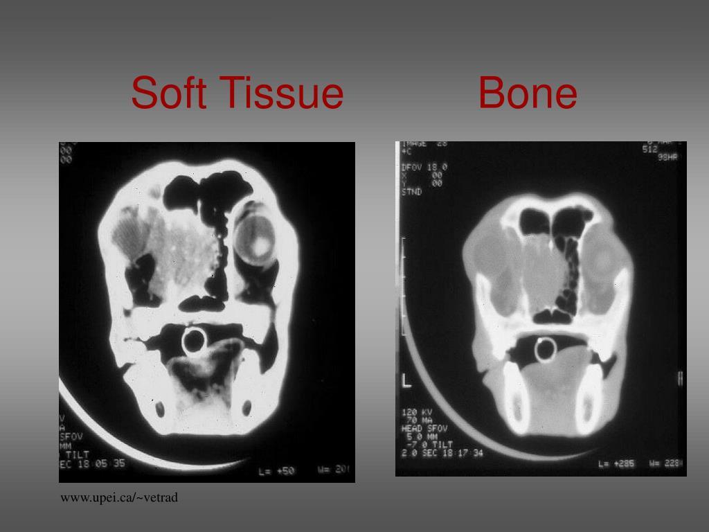 Soft Tissue           Bone