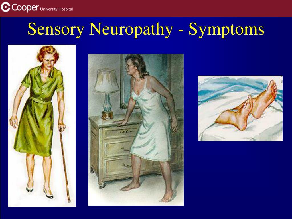 Sensory Neuropathy - Symptoms