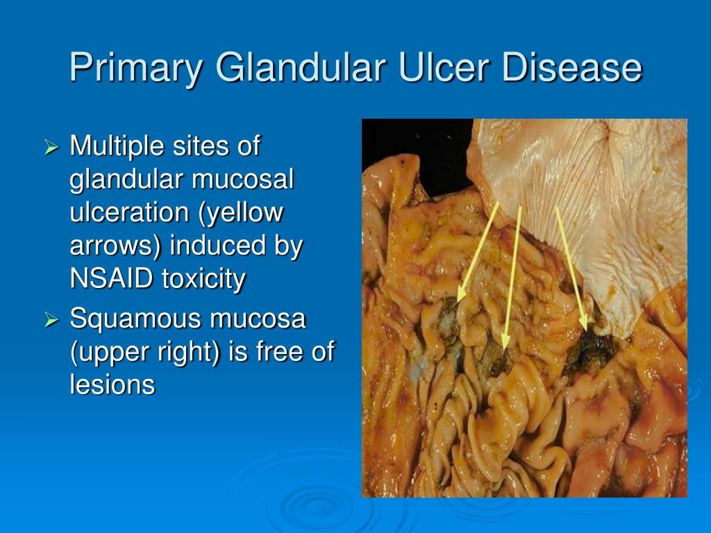 Primary Glandular Ulcer Disease