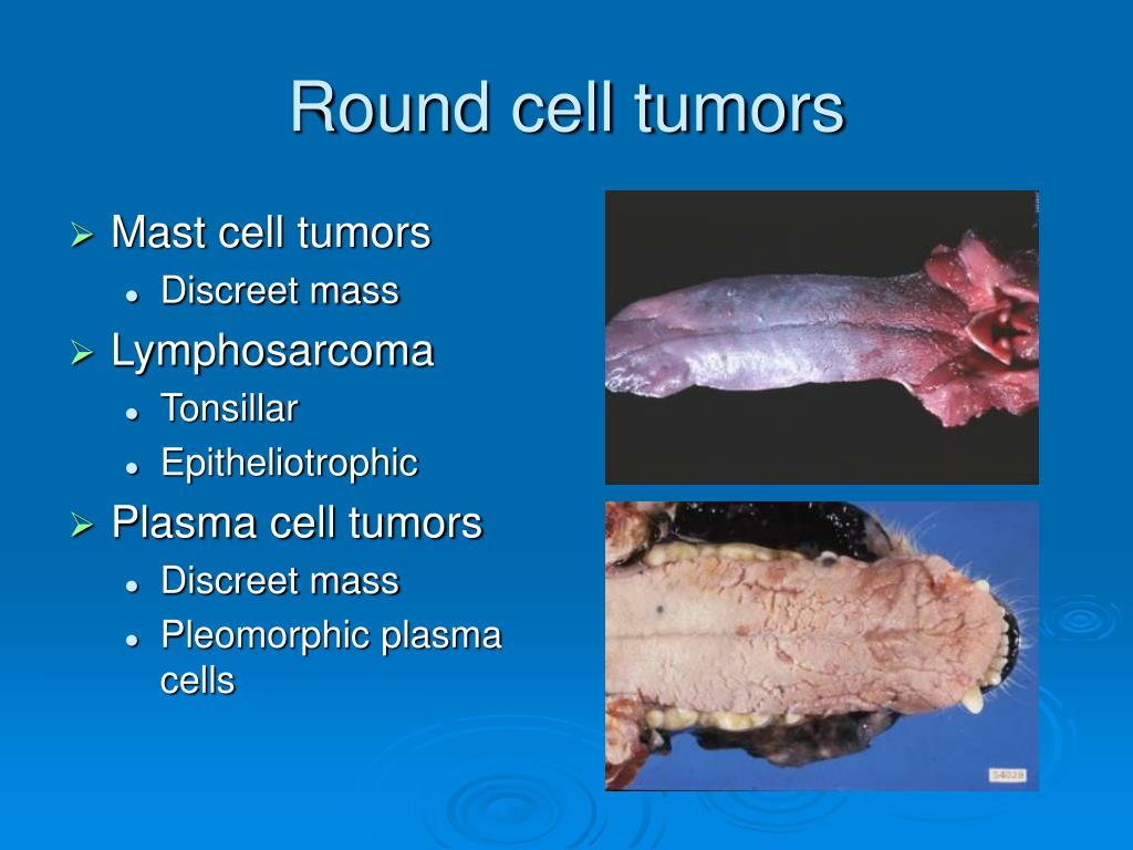 Round cell tumors