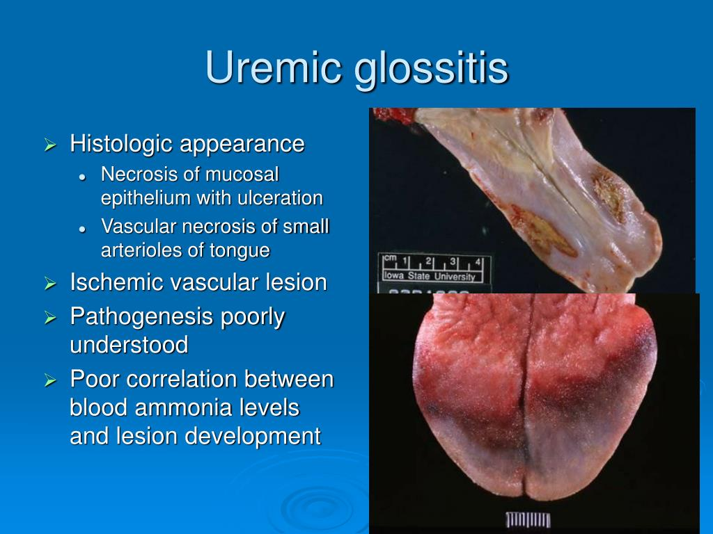 Uremic glossitis