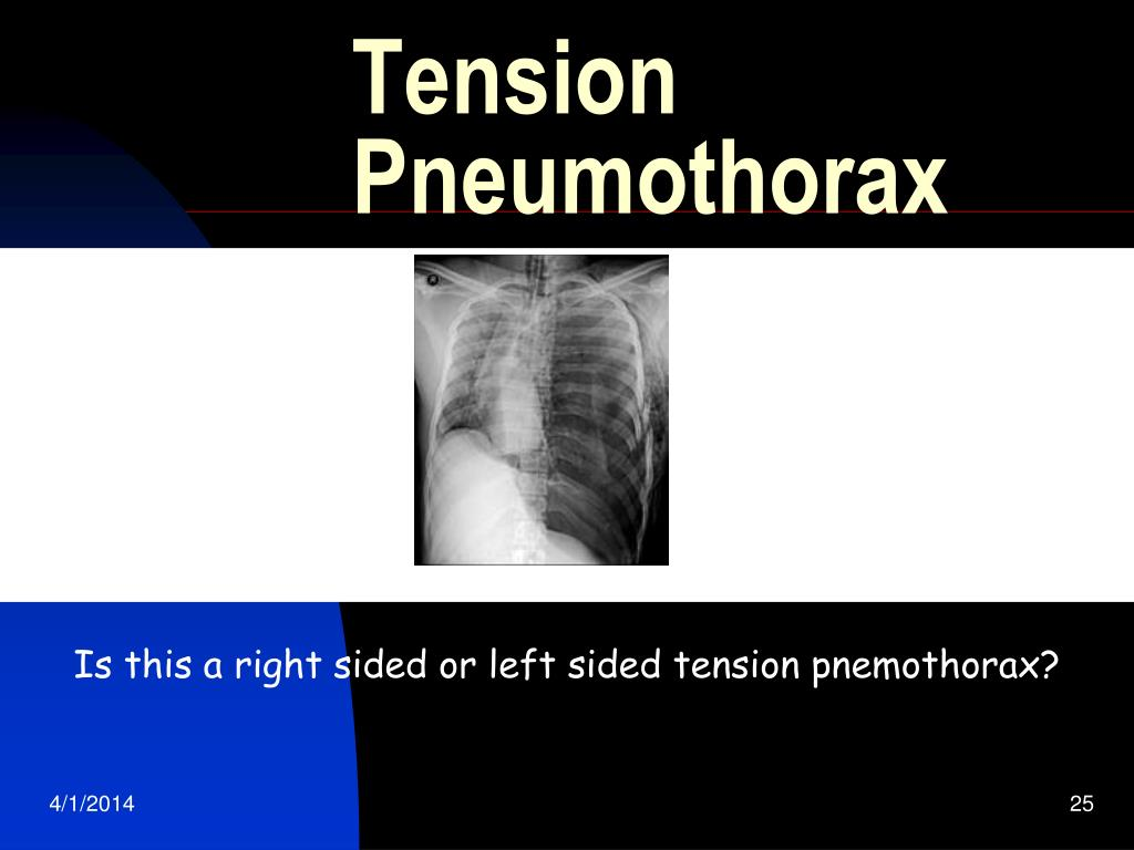 PPT - Respiratory Disorders: Pleural and Thoracic Injury ...