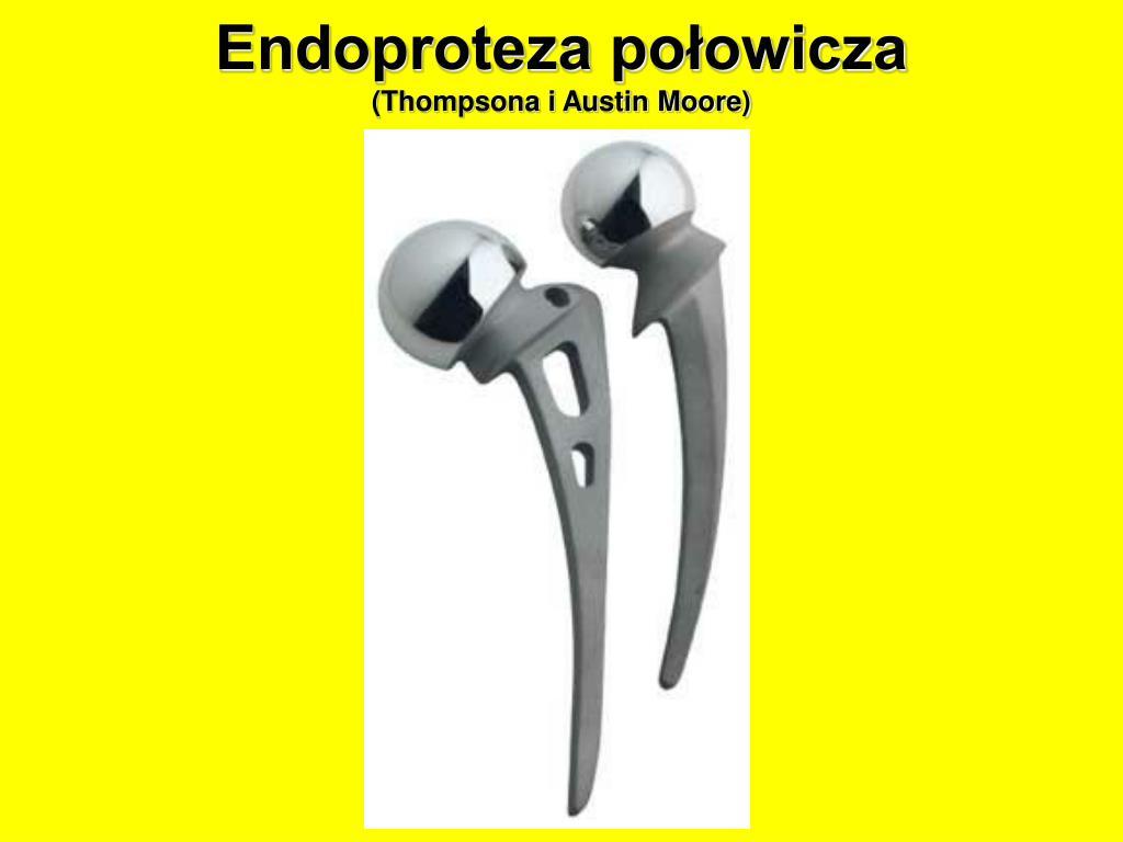 Endoproteza połowicza