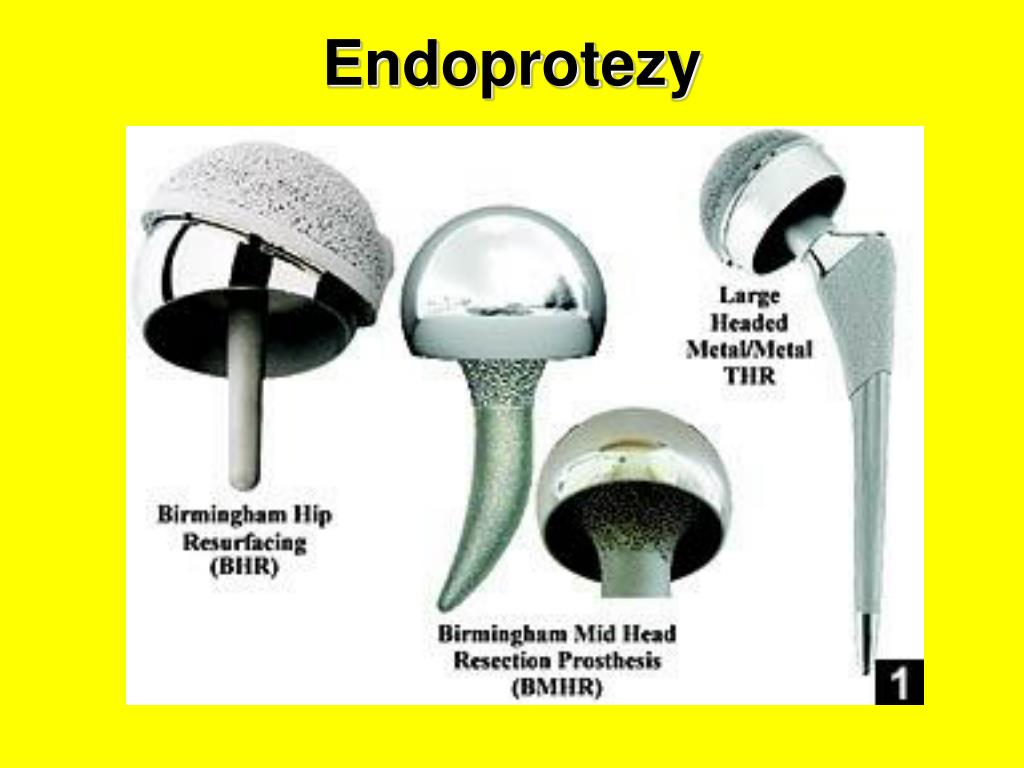 Endoprotezy