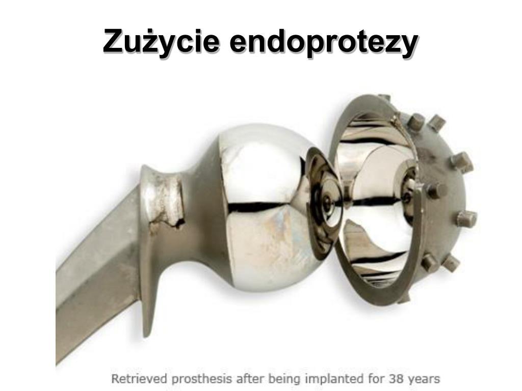 Zużycie endoprotezy