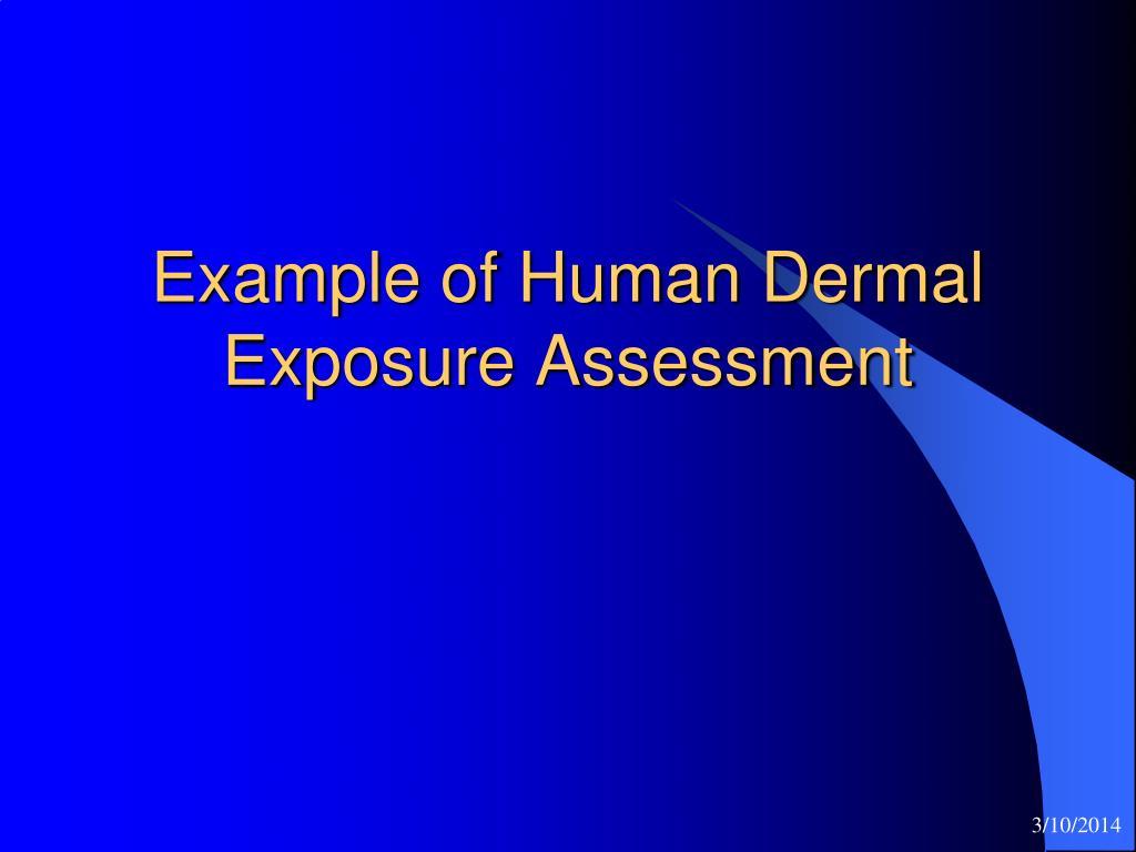 Example of Human Dermal Exposure Assessment