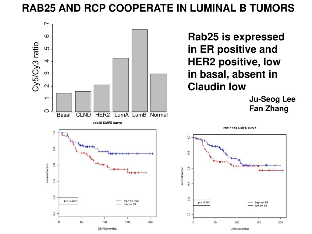 RAB25 AND RCP COOPERATE IN LUMINAL B TUMORS