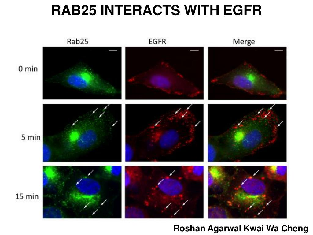 RAB25 INTERACTS WITH EGFR
