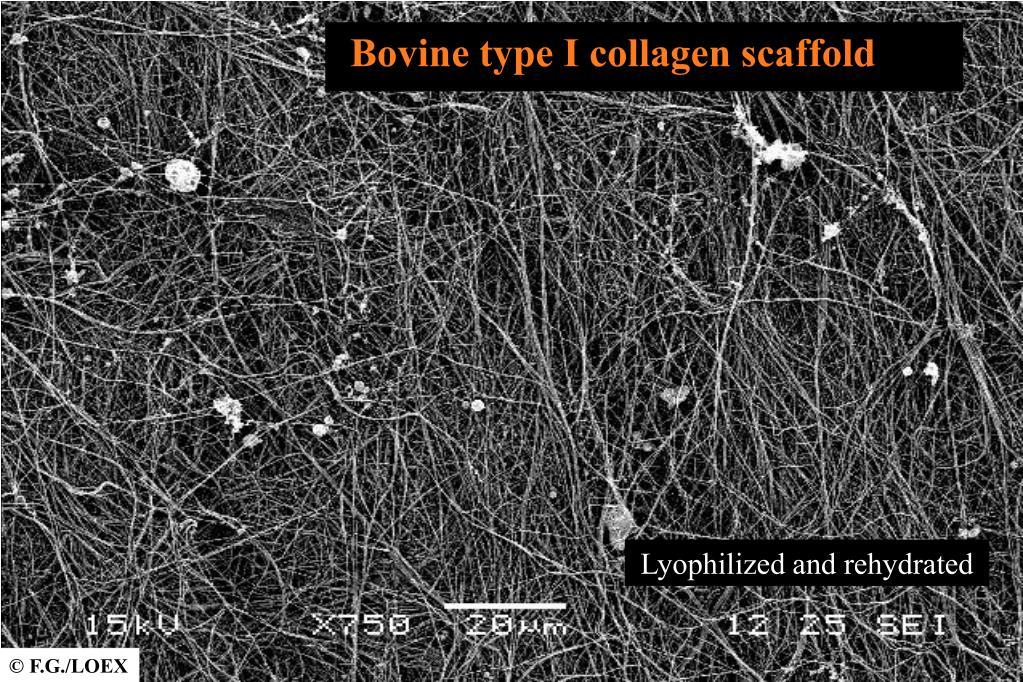 Bovine type I collagen scaffold