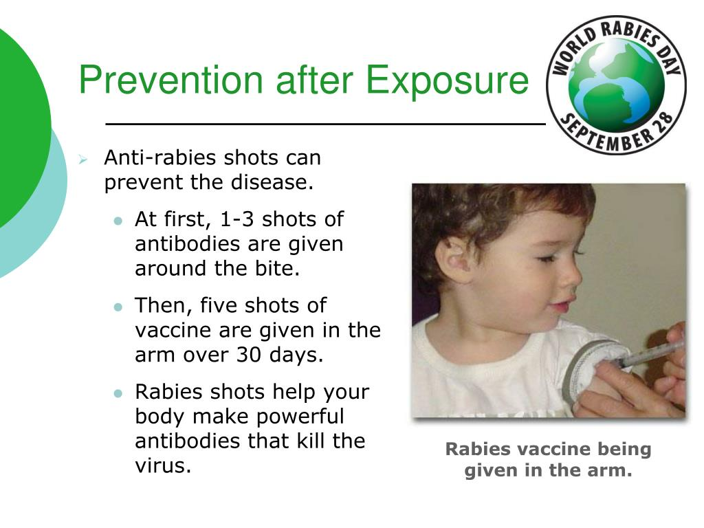 Prevention after Exposure