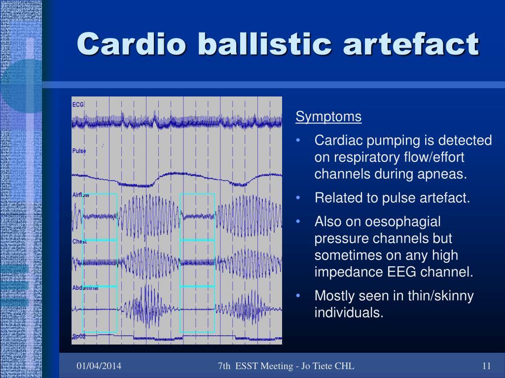 Cardio ballistic artefact