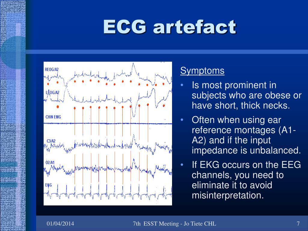 ECG artefact