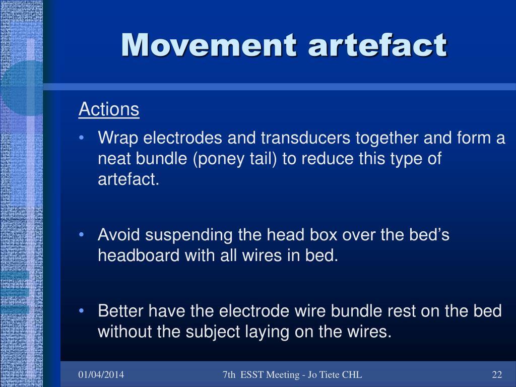Movement artefact