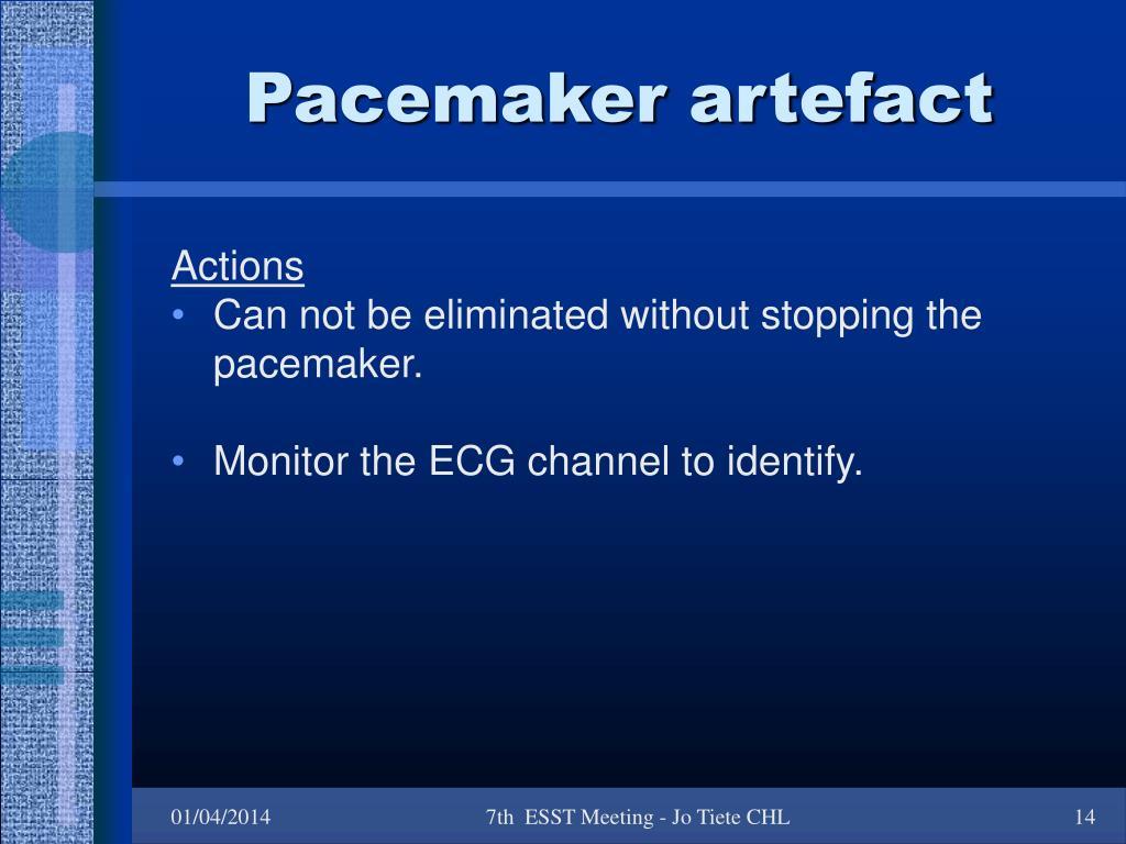 Pacemaker artefact