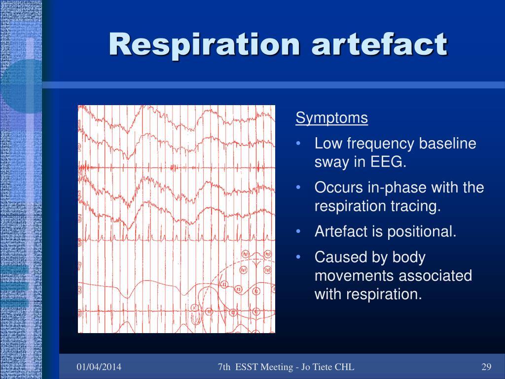 Respiration artefact