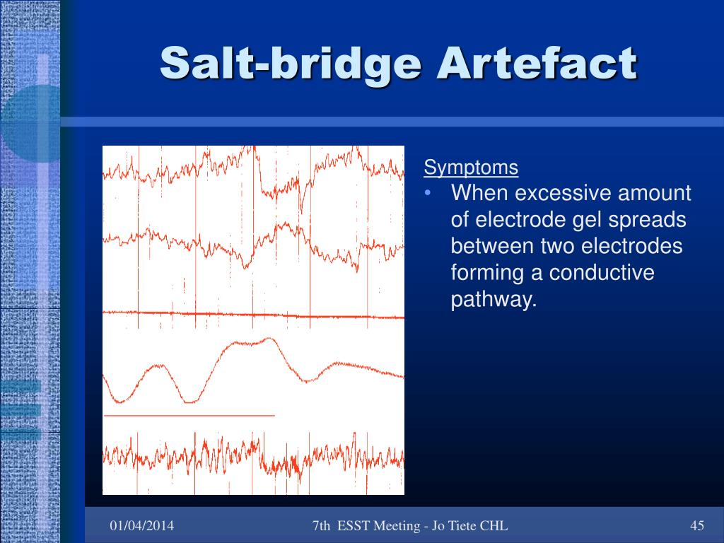 Salt-bridge Artefact