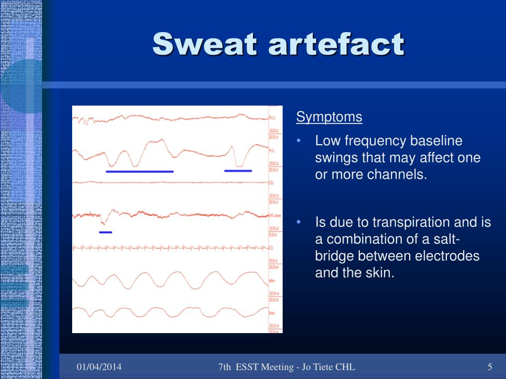 Sweat artefact