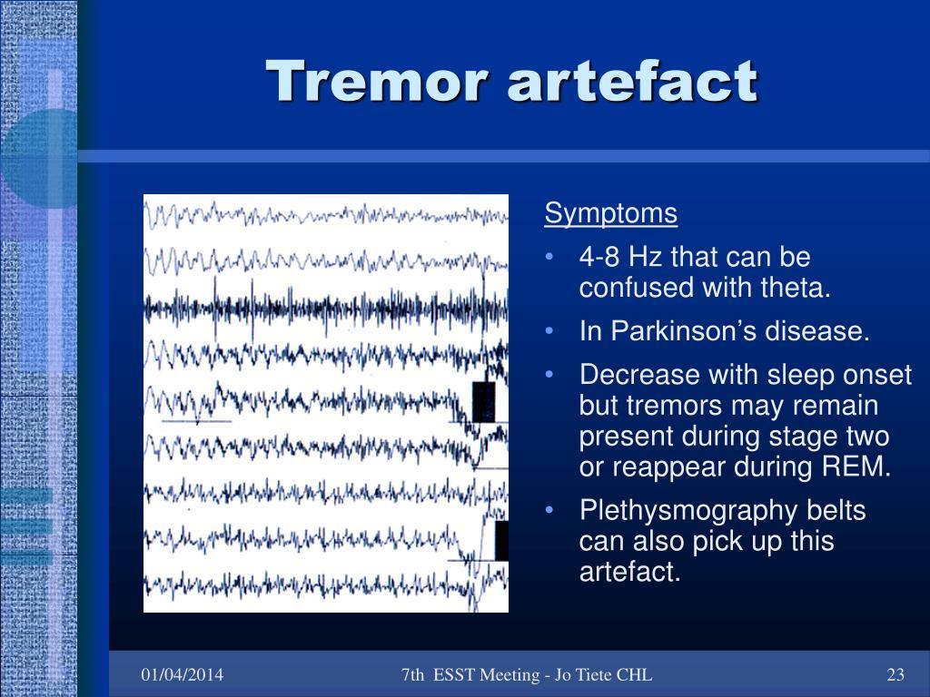 Tremor artefact
