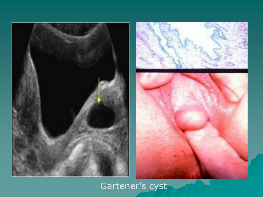 Gartener's cyst