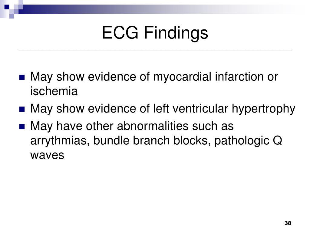 ECG Findings