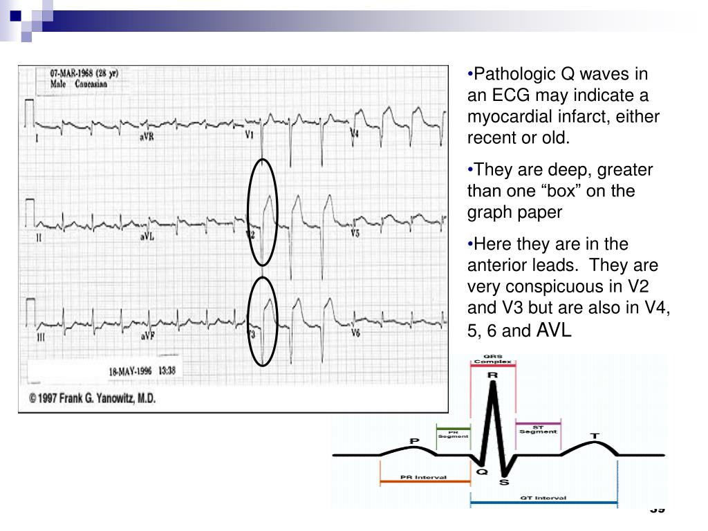 Pathologic Q waves in an ECG may indicate a myocardial infarct, either recent or old.