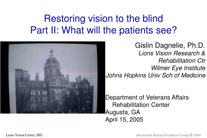 Restoring vision to the blind part ii what will the patients see l.jpg