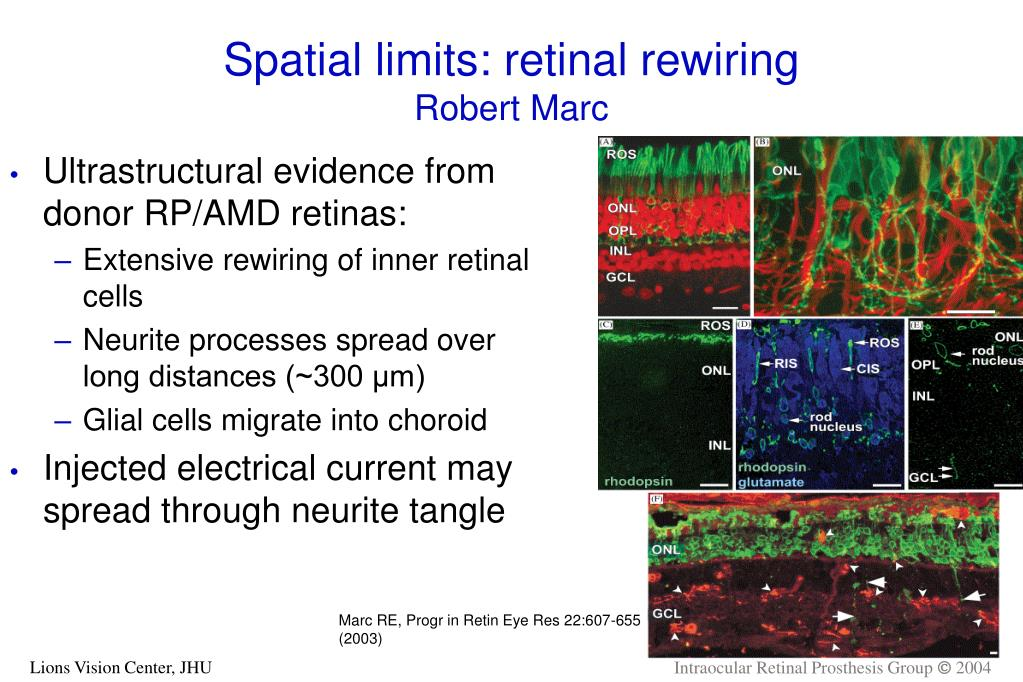 Spatial limits: retinal rewiring