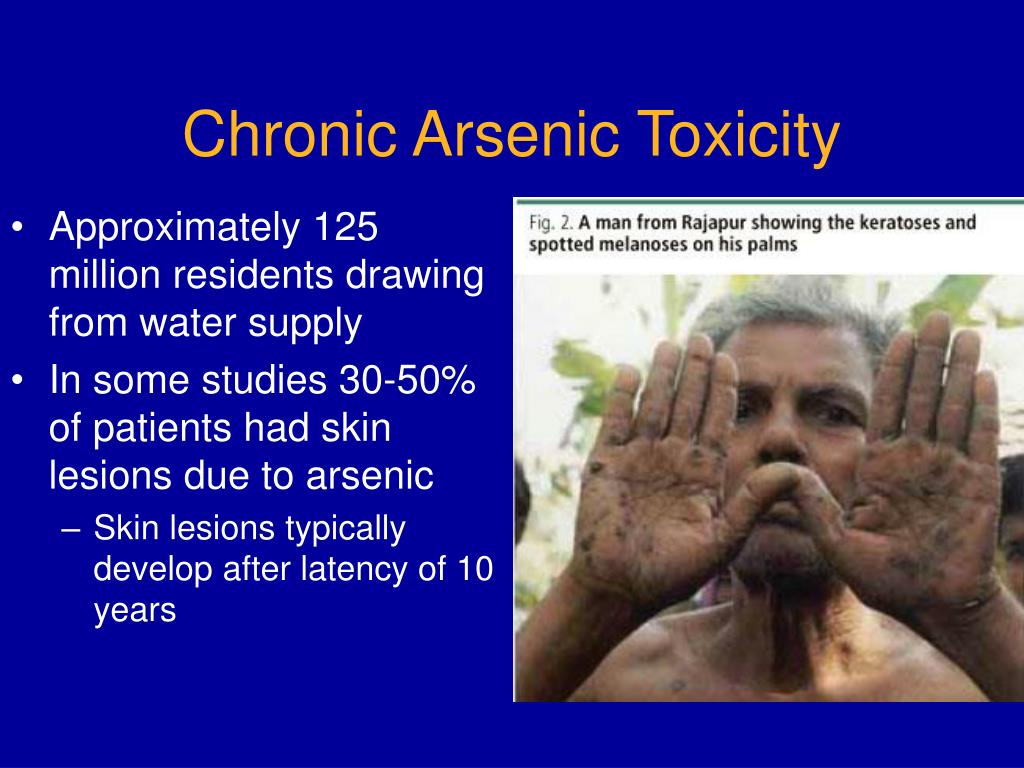 Chronic Arsenic Toxicity
