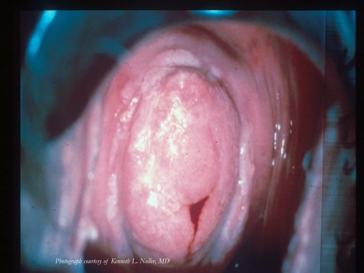 Photograph courtesy of Kenneth L. Noller, MD