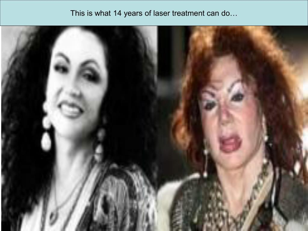This is what 14 years of laser treatment can do…