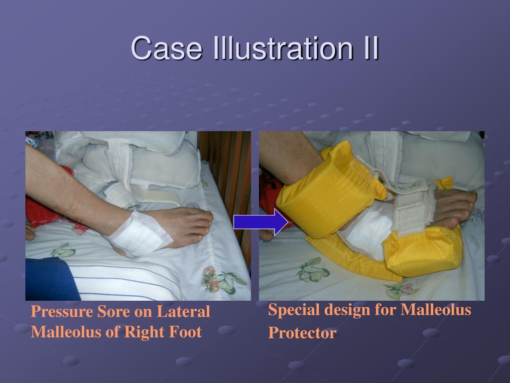 Case Illustration II