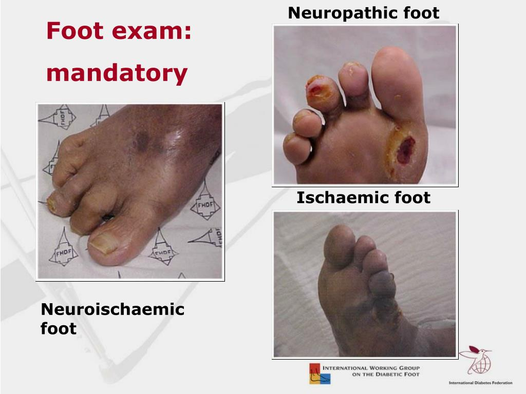 Neuropathic foot
