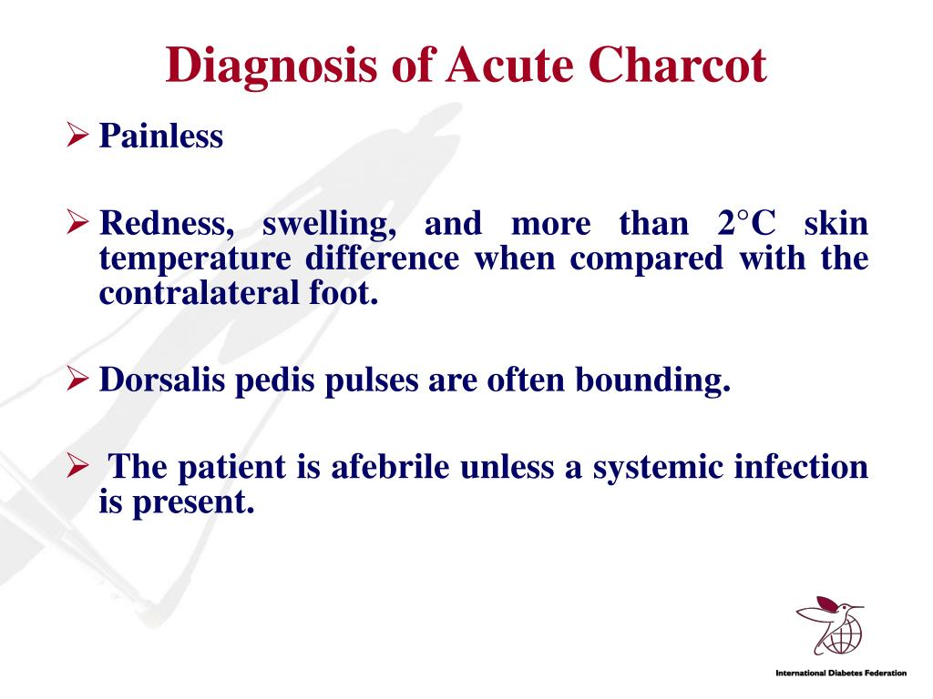 Diagnosis of Acute Charcot