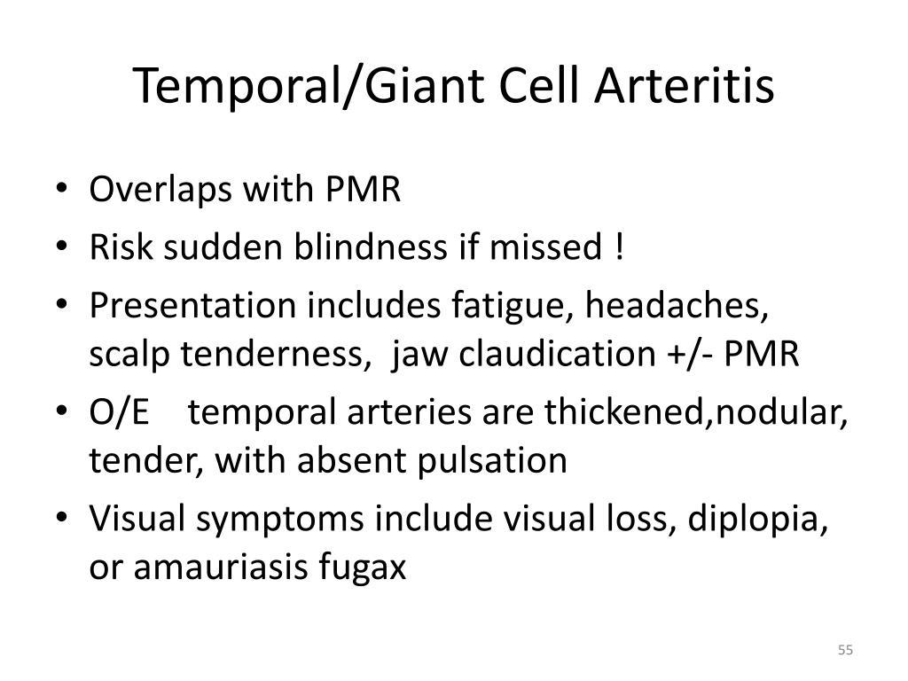 Temporal/Giant Cell Arteritis