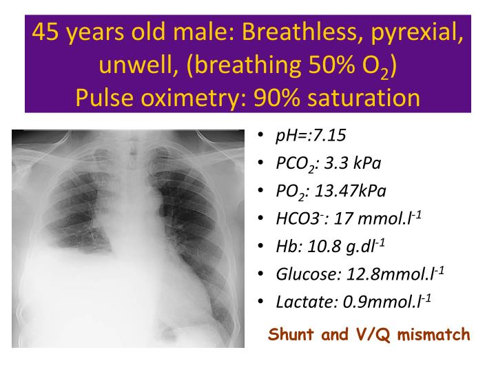 45 years old male: Breathless, pyrexial, unwell, (breathing 50% O