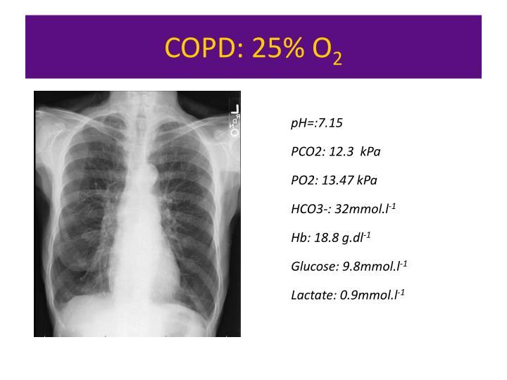 COPD: 25% O