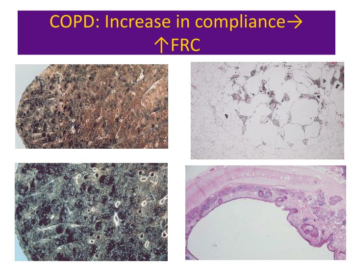 COPD: Increase in compliance