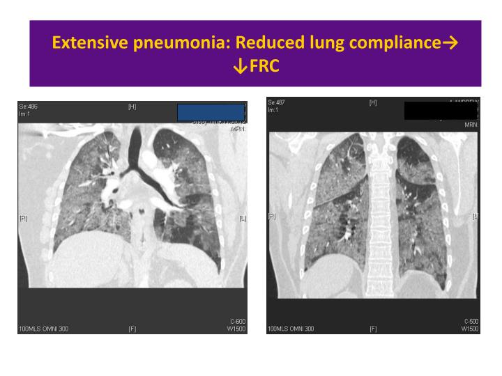 Extensive pneumonia: Reduced lung compliance