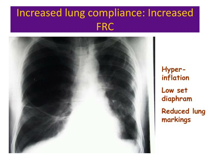 Increased lung compliance: Increased FRC